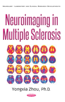 Neuroimaging in Multiple Sclerosis, Paperback Book