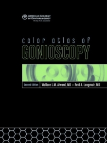 Color Atlas of Gonioscopy, Mixed media product Book