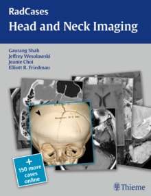 RadCases Head and Neck Imaging, Paperback Book