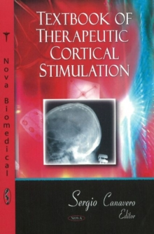 Textbook of Therapeutic Cortical Stimulation, Hardback Book