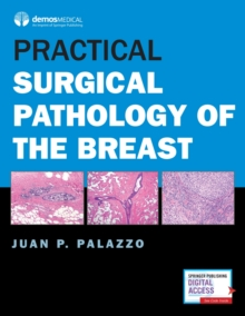 Practical Surgical Pathology of the Breast, Hardback Book