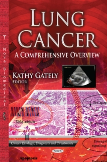 Lung Cancer : A Comprehensive Overview, Hardback Book