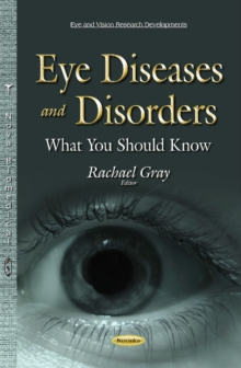 Eye Diseases & Disorders : What You Should Know, Paperback Book