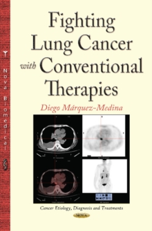 Fighting Lung Cancer with Conventional Therapies, Hardback Book