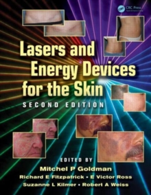 Lasers and Energy Devices for the Skin, Hardback Book