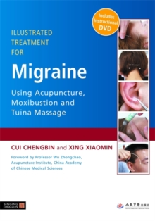 Illustrated Treatment for Migraine Using Acupuncture, Moxibustion and Tuina Massage, Paperback Book