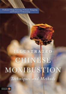 Illustrated Chinese Moxibustion Techniques and Methods, Paperback Book