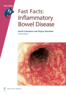Fast Facts: Inflammatory Bowel Disease, PDF eBook