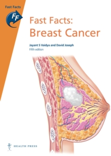 Fast Facts: Breast Cancer, Paperback Book