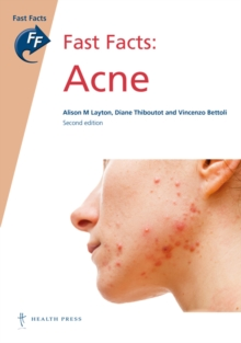 Fast Facts: Acne, Paperback Book