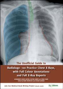 The Unofficial Guide to Radiology : 100 Practice Chest X-Rays, Paperback Book