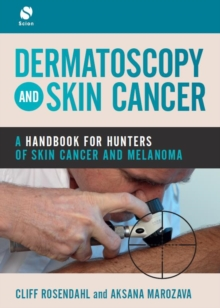 Dermatoscopy and Skin Cancer : A handbook for hunters of skin cancer and melanoma, Paperback / softback Book