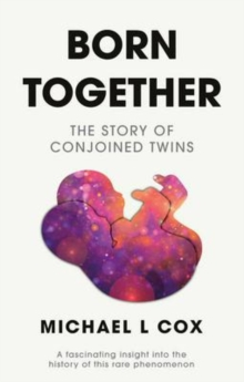Born Together: The Story of Conjoined Twins, Paperback / softback Book