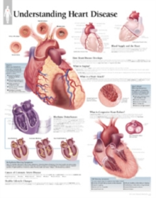 Understanding Heart Disease Laminated Poster, Poster Book