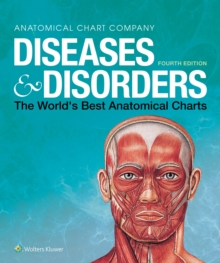 Diseases & Disorders : The World's Best Anatomical Charts, Spiral bound Book