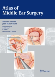 Atlas of Middle Ear Surgery, Hardback Book