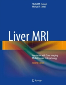 Liver MRI : Correlation with Other Imaging Modalities and Histopathology, Hardback Book