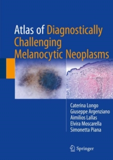Atlas of Diagnostically Challenging Melanocytic Neoplasms, EPUB eBook