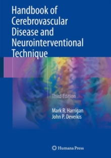 Handbook of Cerebrovascular Disease and Neurointerventional Technique, Paperback Book