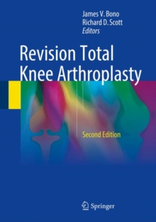 Revision Total Knee Arthroplasty, Hardback Book