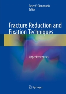 Fracture Reduction and Fixation Techniques : Upper Extremities, Hardback Book
