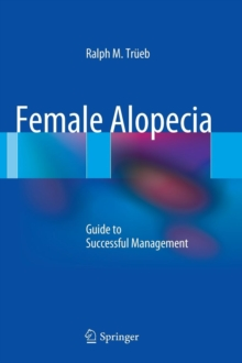 Female Alopecia : Guide to Successful Management, Hardback Book