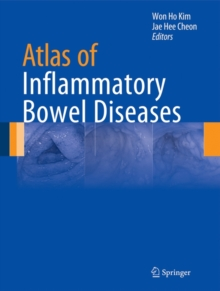 Atlas of Inflammatory Bowel Diseases, Hardback Book