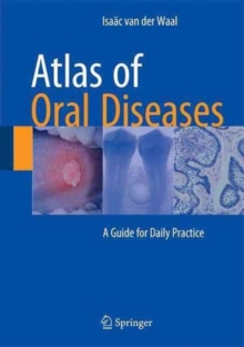 Atlas of Oral Diseases : A Guide for Daily Practice, Hardback Book