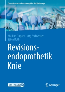 Revisionsendoprothetik Knie, Paperback Book
