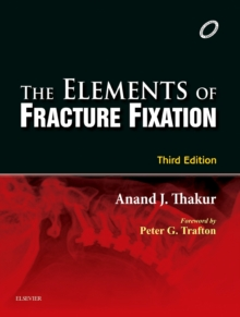 Elements of Fracture Fixation - E-book, EPUB eBook