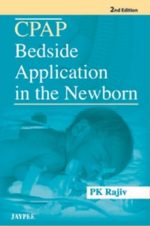 CPAP Bedside Application in the Newborn, Paperback Book
