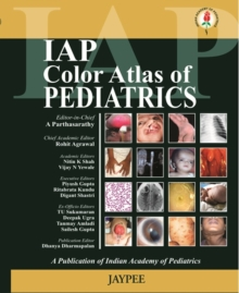 IAP Colour Atlas of Pediatrics, Paperback Book