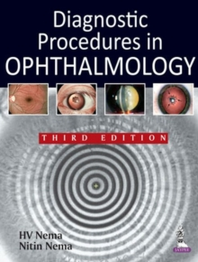 Diagnostic Procedures in Ophthalmology, Paperback Book