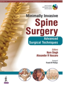 Minimally Invasive Spine Surgery, Hardback Book
