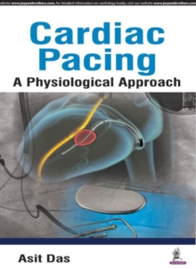 Cardiac Pacing A Physiological Approach, Paperback Book