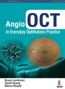 Angio OCT in Everyday Ophthalmic Practice, Hardback Book
