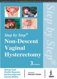 Step by Step: Non-Descent Vaginal Hysterectomy, Paperback Book