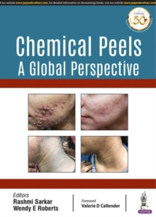 Chemical Peels: A Global Perspective, Paperback / softback Book