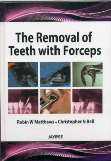 The Removal of Teeth with Forceps, Mixed media product Book
