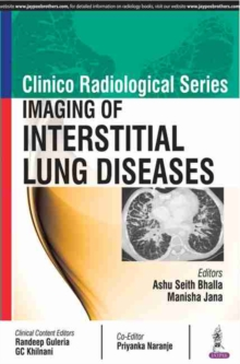 Clinico Radiological Series: Imaging of Interstitial Lung Diseases, Paperback Book