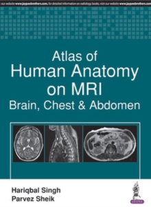 Atlas of Human Anatomy on MRI : Brain, Chest & Abdomen, Paperback Book